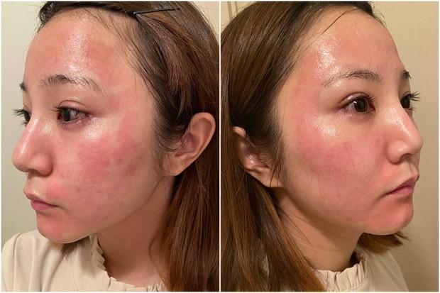 """本音レポ""""攻め美容""""【CO2フラクショナルレーザー体験記】脱皮画像あり。施術後の紫外線対策も。_1"""