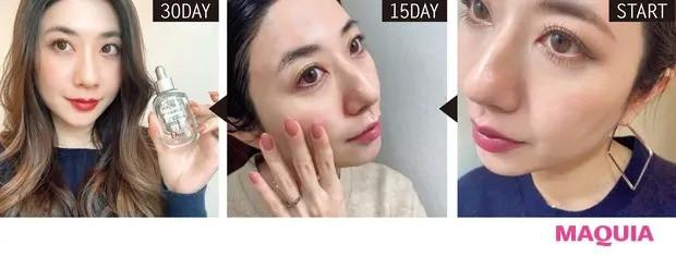 【毛穴ケア】鼻横の、気になる毛穴の範囲が減っている実感あり。肌荒れも軽減したので、このままリピ検討中。