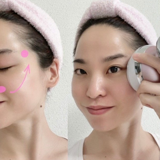 【ビフォーアフター公開】30代からのたるみ・リフトアップに効果的な美顔器は「EMS」&美顔器の効果的…