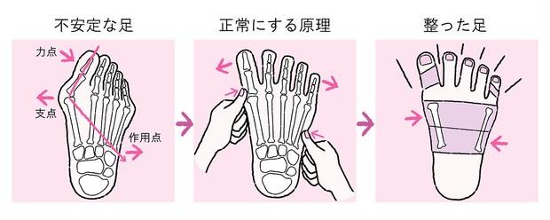 ズキズキ痛みを感じたら要注意! 【外反母趾】の原因と正しい対策_3