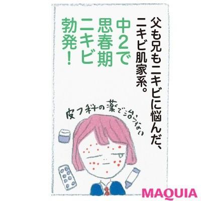 """【ニキビケア】野口由佳さんの""""ニキビ肌""""からの逆転ワザ_1"""