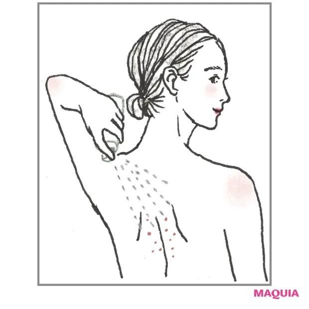 【ニキビケア】背中ニキビは抗炎症保湿を_3