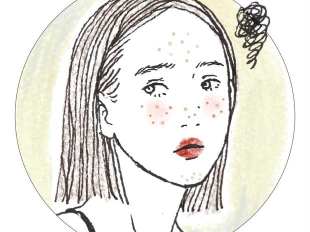 とっさの夏ニキビセルフケア!顎・口まわりの白ニキビ、悪化させない方法は?