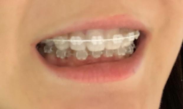 ホワイトブラケット、ホワイトワイヤー、歯列矯正、ワイヤー矯正
