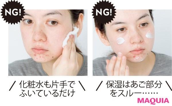 【肌をもっと綺麗に! 肌本来の美しさを引き出すスキンケア】炎症の放置&潤い不足が、ニキビを悪化させています