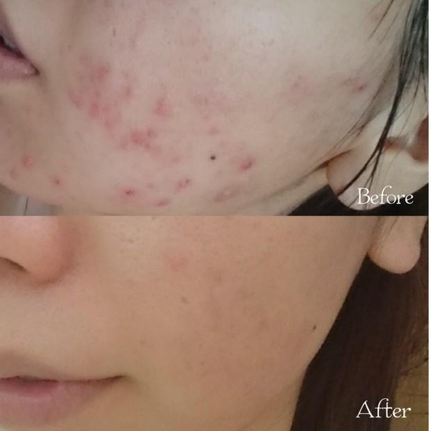 【ニキビ治療】ディフェリンゲル(アダパレン)とエピデュオゲルの6ヶ月間使用レポート!