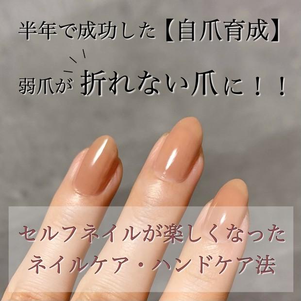 縦長爪 自爪育成 自爪ケア ハイポキニウム