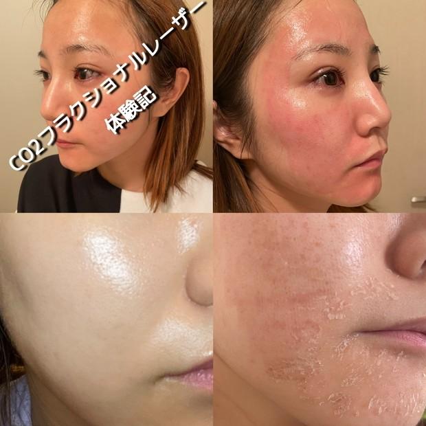 """本音レポ""""攻め美容""""【CO2フラクショナルレーザー体験記】脱皮画像あり。施術後の紫外線対策も。"""