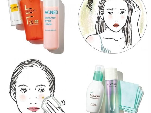 【ニキビケア】ニキビやニキビ跡のお悩みに! 化粧水・洗顔などおすすめアイテム&使い方まとめ