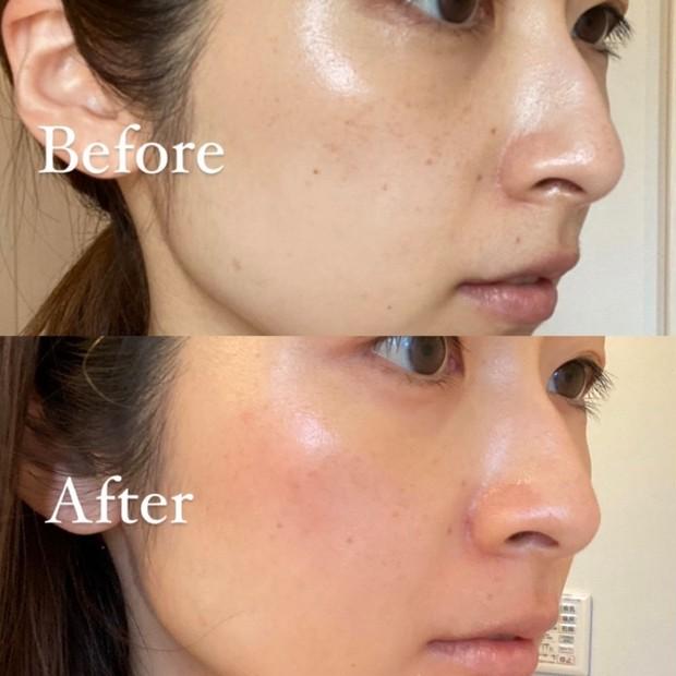 【記録用】皮膚科に通ったら、気になっていたシミがトレチノイン使用で2週間でここまで変わった!!
