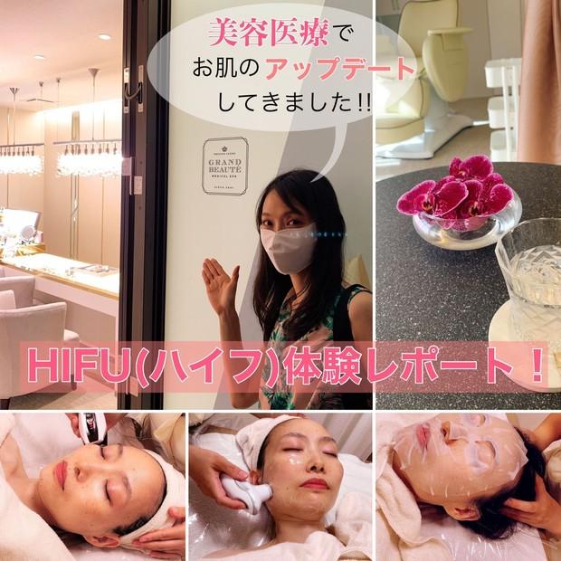 【小顔&リフトアップ】今こそ美容医療!隠れ家サロンでHIFU(ハイフ)体験レポート!_1