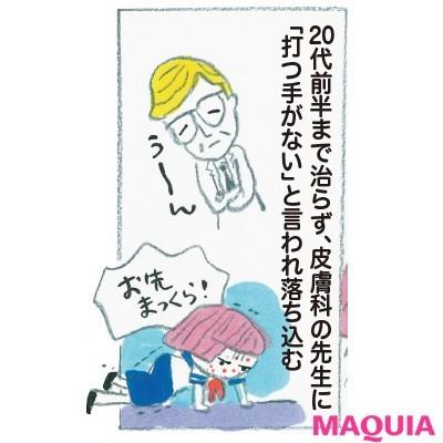 """【ニキビケア】野口由佳さんの""""ニキビ肌""""からの逆転ワザ_3"""