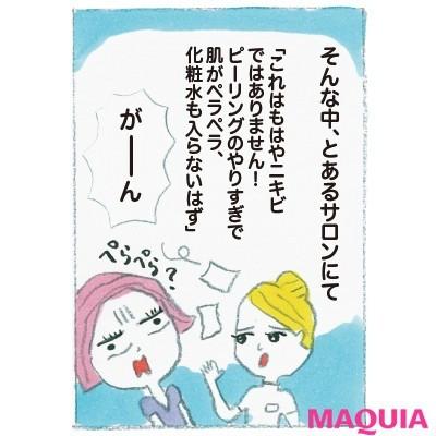 """【ニキビケア】野口由佳さんの""""ニキビ肌""""からの逆転ワザ_4"""