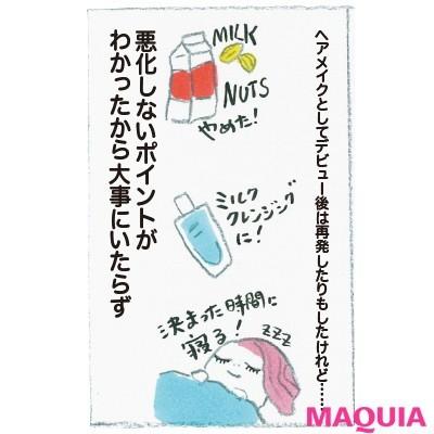 """【ニキビケア】野口由佳さんの""""ニキビ肌""""からの逆転ワザ_9"""