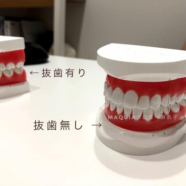 【歯科矯正中】矯正するまでの理由や費用についてざっくりまとめました!