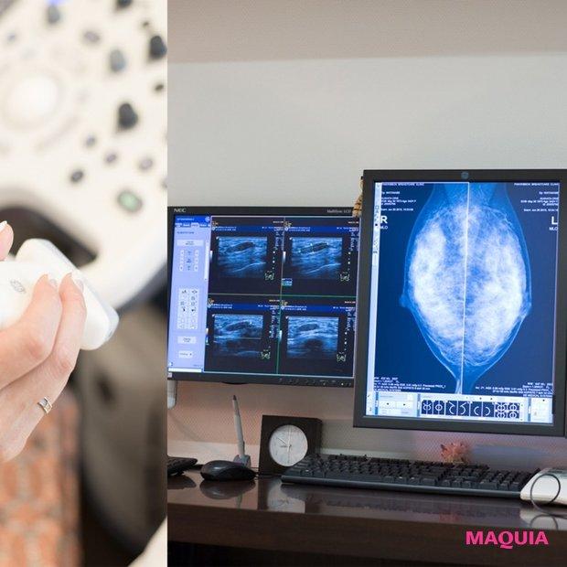 乳がんから自分を守るために、今できることは?