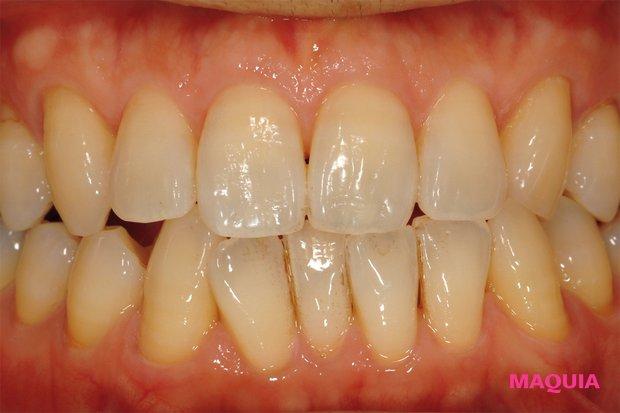 →色素の沈着汚れにより黄ばんだ歯(花王提供)