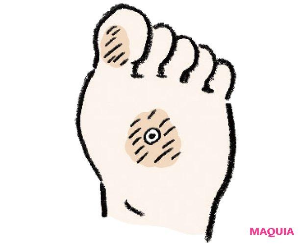 親指側がカチカチorタコができやすい