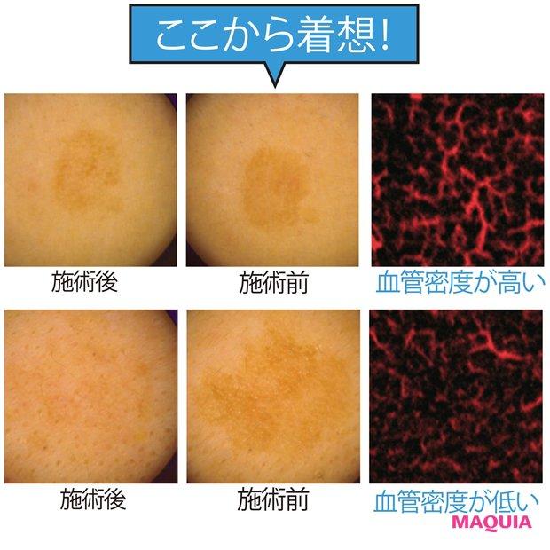 シミ再発の影に異常な血管アリ