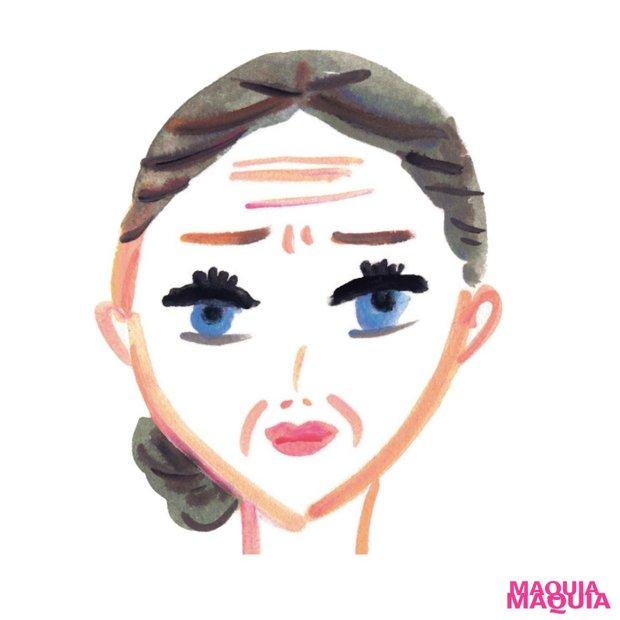 老け感解消! 「消せるものなら消したい」シワを取り去る美容医療Q&A