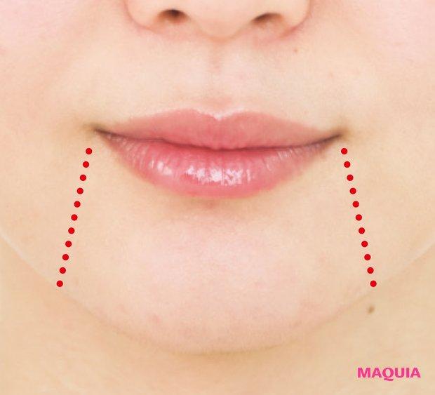 マリオネットラインとは、口角が下がることによって現れる垂直ラインのこと